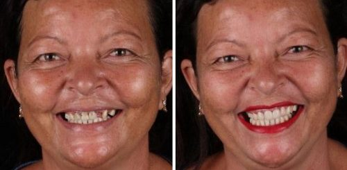 """Бразильский стоматолог путешествует по миру, даря бедным людям улыбки, веру в себя и надежду на будущее (25 фото)"""">"""